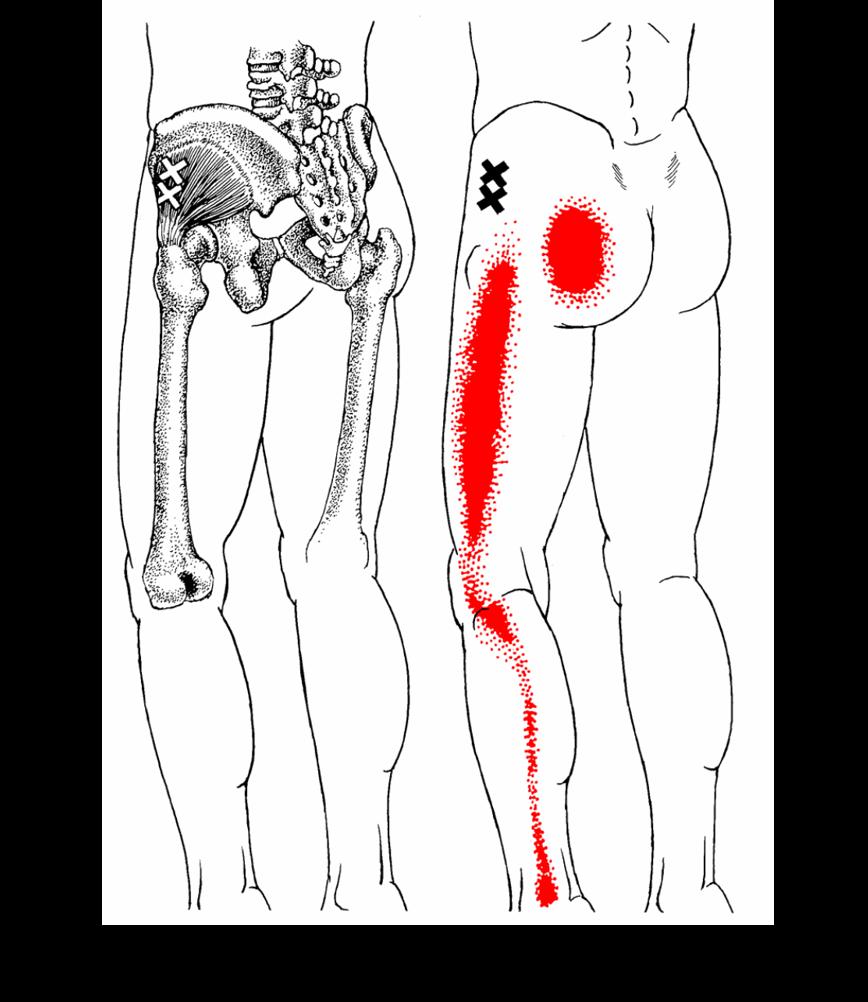 腰椎椎間板ヘルニア トリガーポイント