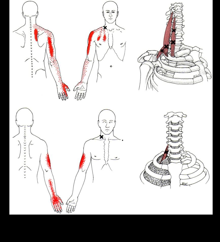 頸椎ヘルニア トリガーポイント