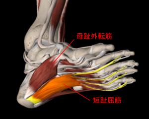 足裏の痛み(足底筋膜炎)   トリガーポイント療法専門 もり ...