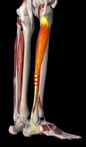 長腓骨筋トリガーポイント