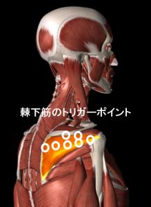 棘下筋のトリガーポイント